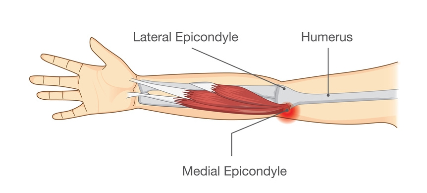 A medical diagram showing Lateral Epicondylitis